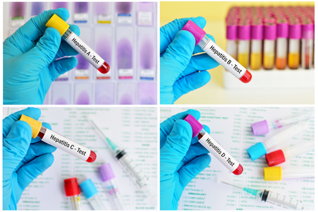 Mixed of blood sample tubes for hepatitis virus test Stok Fotoğraf