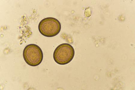 Egg of Taenia in stool Stok Fotoğraf