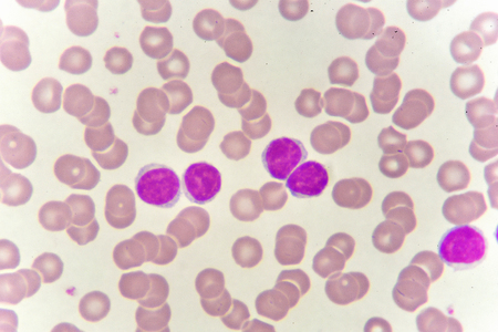 White blood cells in blood smear Stock Photo