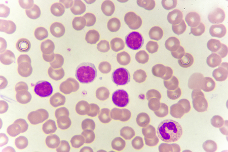 血のスミアの白血球 写真素材