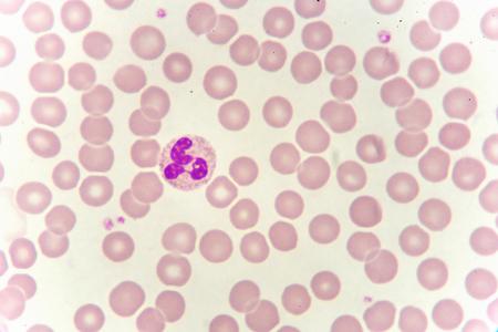 Neutrophil cell in blood smear