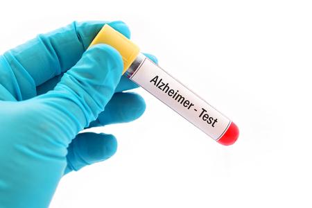 Test tube with blood sample for Alzheimer disease test