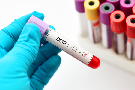 Blood sample positive with DCIP test Stock Photo