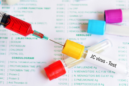 Test tube with blood sample for JC virus test Stock Photo