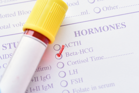 Blood sample for beta hCG hormone test Stock Photo