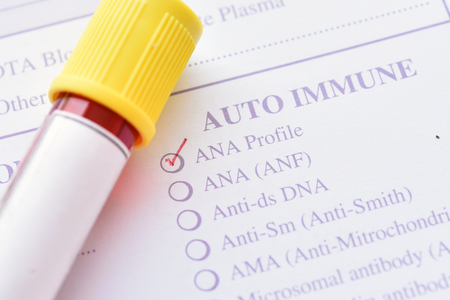 Blood sample for antinuclear antibody test