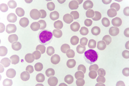 Lymphocyte cells in blood smear Stock Photo