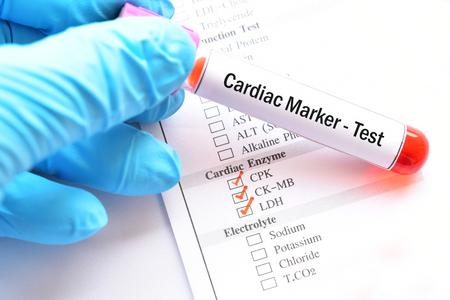 Blood sample for cardiac marker test