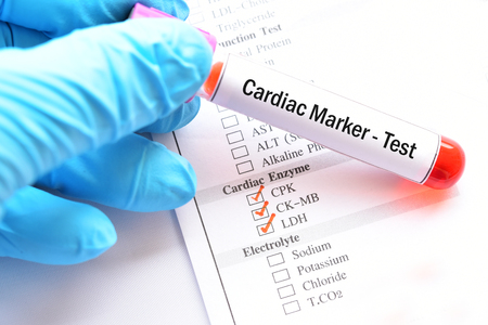 Blood sample for cardiac marker test