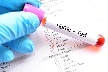 Blood sample for HbA1c test