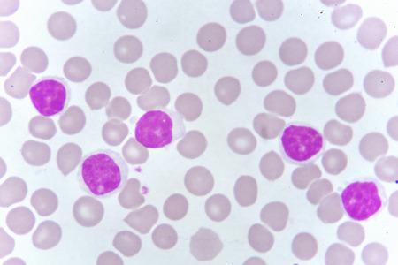 Blood smear of chronic lymphocytic leukemia
