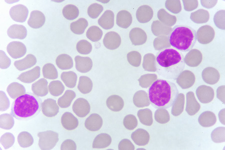 Blood smear of chronic lymphocytic leukemia