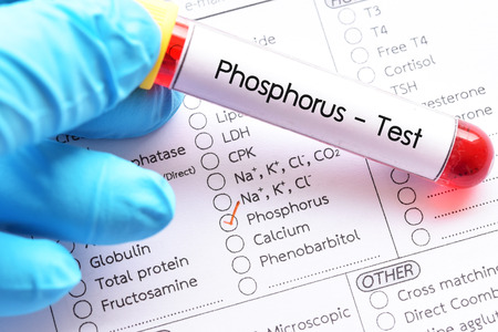 Blood sample for phosphorus test Stock Photo
