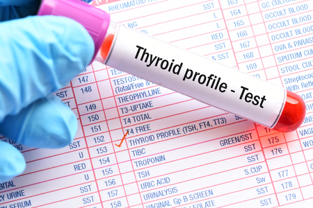 Blood sample for thyroid profile test