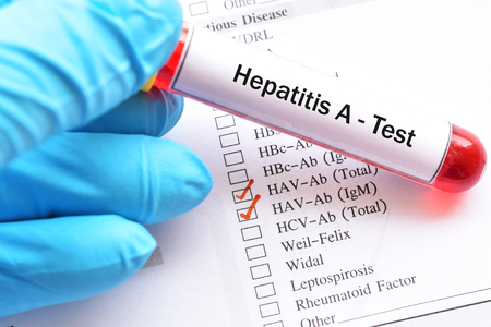 Blood sample for hepatitis A virus test