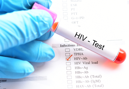 Blood sample for HIV test Stock Photo