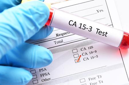 Blood sample for CA15-3 test
