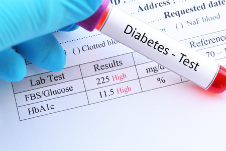 Blood sample with diabetes test result Stock Photo