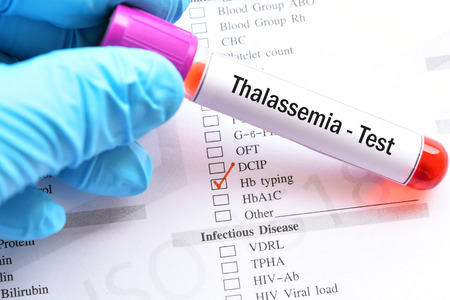Blood sample for thalassemia test