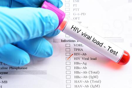Blood sample for HIV viral load test