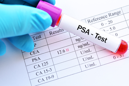 Abnormal high PSA test result with blood sample
