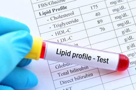 Normal lipid profile test result with blood sample Stock Photo - 101275152