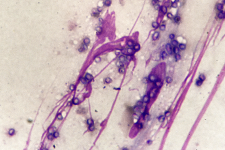 Yeast form of Talaromyces marneffei in skin of AIDS patient