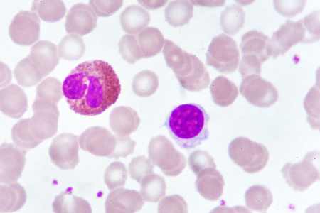 White blood cells in blood smear, analyze by microscope Stock Photo