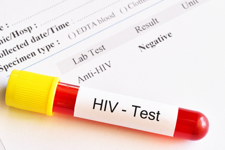 Blood sample tube with HIV negative test result