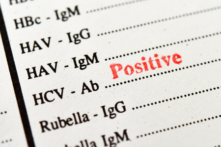 Laboratory report with hepatitis C virus positive test result