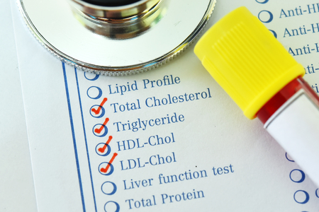Laboratory requisition form with blood sample tube for lipid profile test Stock Photo