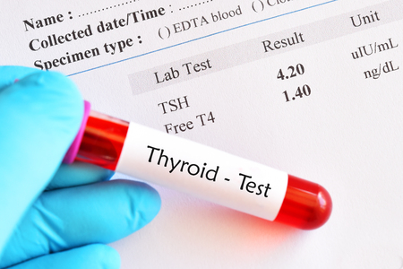 Blood sample tube with normal thyroid hormone test result