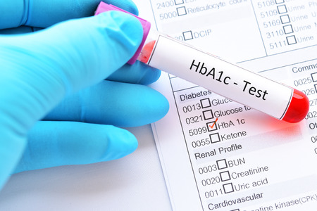Blood sample tube with laboratory requisition form for HbA1c test 写真素材