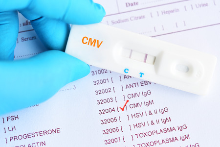 Cytomegalovirus positive test result by using rapid test cassette Stock Photo - 105390652