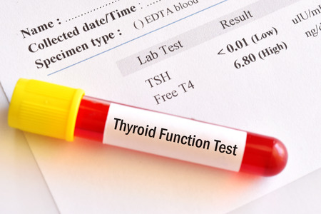 Blood sample tube with abnormal thyroid hormone test result