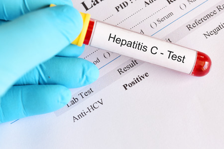 Hepatitis C virus positive test result with blood sample tube