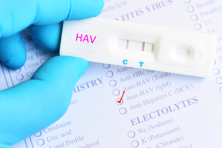 Hepatitis A virus positive test result by using rapid test cassette Stock Photo