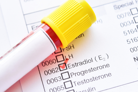 Blood sample tube with laboratory requisition form for estradiol hormone test Stock fotó