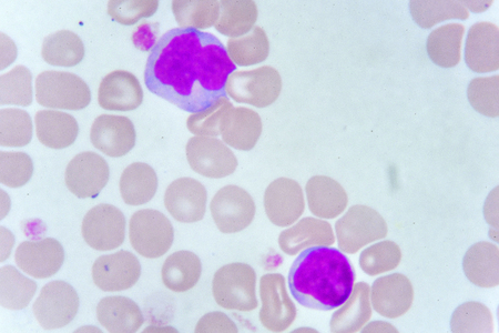 White blood cells in blood smear, analyze by microscope