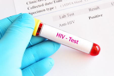 HIV positive test result with blood sample tube