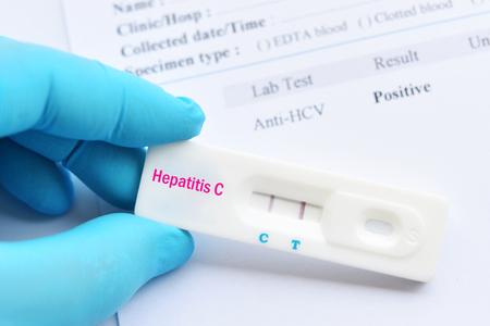 Hepatitis C virus positive test result by using rapid test cassette