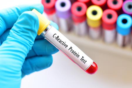 Tubo de muestra de sangre para prueba de proteína C reactiva