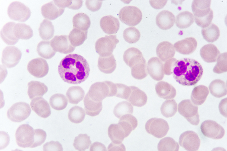 White blood cells in blood smear