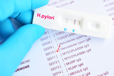 H.pylori positive test result by using rapid test cassette