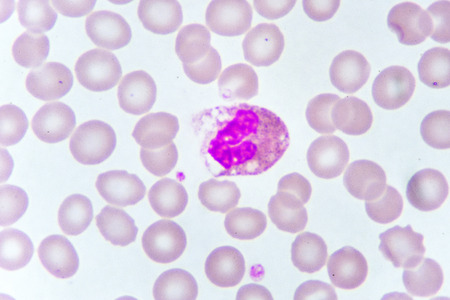 White blood cell in blood smear