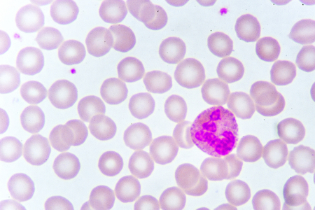 White blood cell in blood smear Stock Photo
