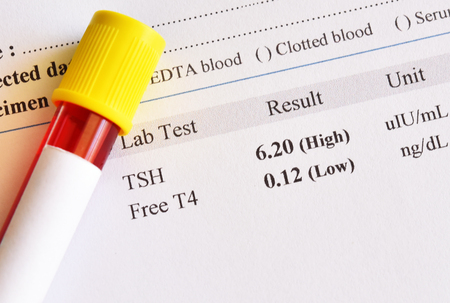 Blood sample tube with abnormal thyroid hormone test result Banco de Imagens - 105718964