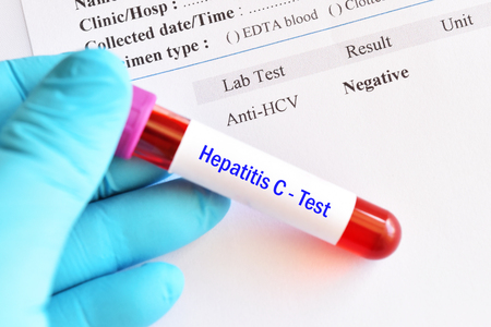Hepatitis C virus negative test result with blood sample tube