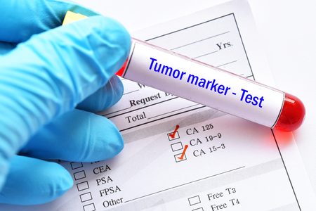 Tubo de muestra de sangre con formulario de solicitud de laboratorio para prueba de marcador tumoral