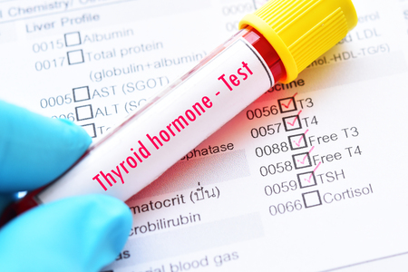 Blood sample tube with laboratory requisition form for thyroid hormone test Stock Photo